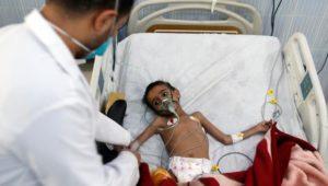 14 Millionen Menschen im Jemen von Hunger bedroht