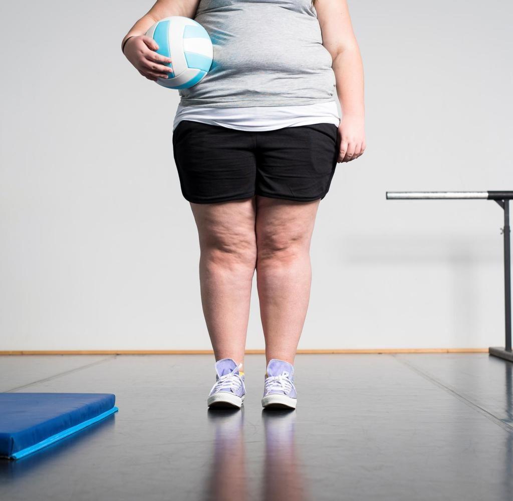 Viele dicke Kinder zeigen Symptome wie sonst nur 50-Jährige
